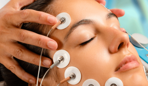 BeCalmed Wellbeing and Medi Spa, Cowes – Dermapen Microneedling, Skin Tag, Red Vein and Milia Removal or IPL for Sun Spots and Pigmentation – normally up to £450.00 deal price from £29.00